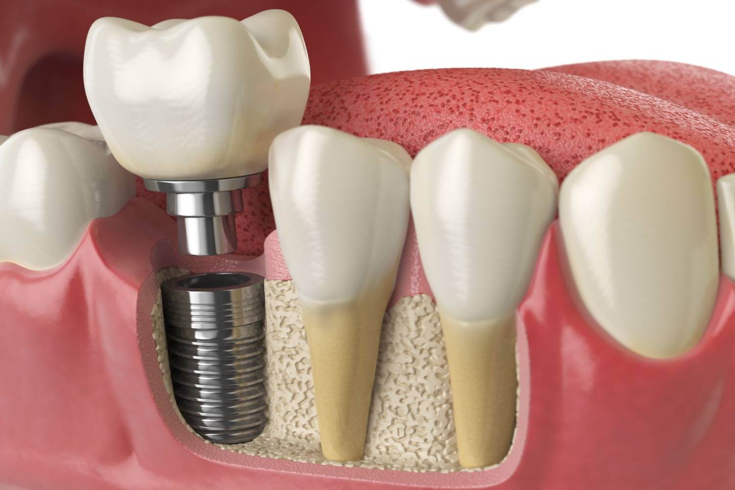 Dental implant model next to teeth with natural roots in Katy, TX