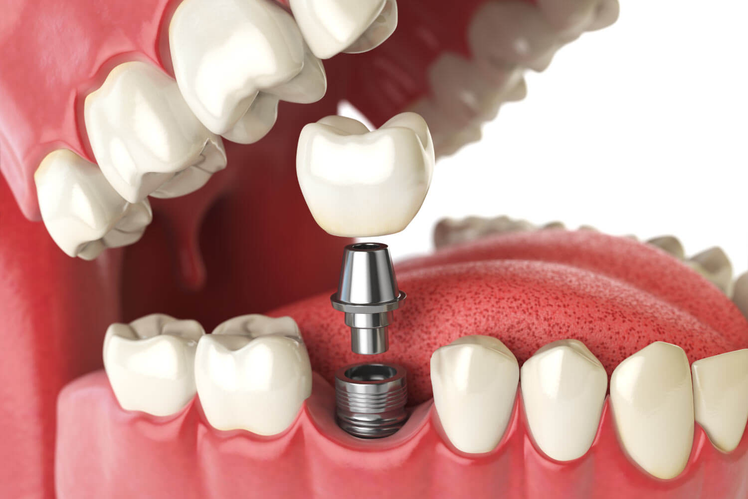 Closeup of a dental implant replacing a back molar in Katy, TX
